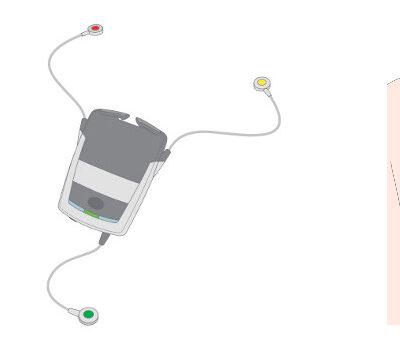 Machbarkeitsstudie für die Entwicklung eines tragbaren Phonokardiographen